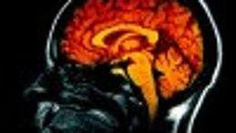 Le cerveau a-t-il une âme?